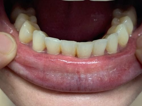Lite Whyte clear aligners | Whyte Orthodontics